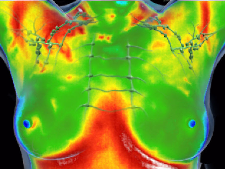 infrared breast screening
